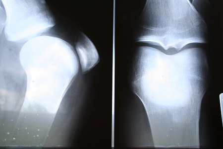 Bolest kloubů může zavinit i borelióza