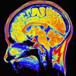 Rehabilitace po poranění mozku