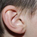 Otoplastika – korekce odstávajících uší