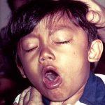 Černý kašel u dětí i dospělých