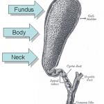 Žlučníkové kameny – příznaky, příčiny a léčba