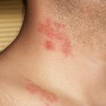 Pásový opar – příčiny, příznaky, léčba