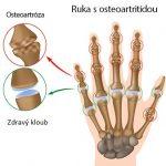 Osteoartróza (artróza) – jak na ni?