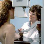 Mamografie – jednoduché rentgenové vyšetření prsů
