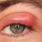 Ječné zrno – příznaky a léčba