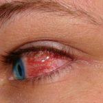 Červené oči – jak na ně a co mohou znamenat?