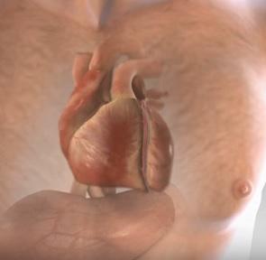 Srdeční infarkt (Infarkt myokardu) - příčiny, příznaky a léčba