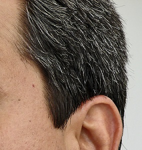 lék na šedivění vlasů