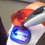 Jak na zažloutlé zuby? Vybělte si je…