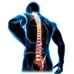Forestierova choroba (difuzní idiopatická hyperostóza skeletu)