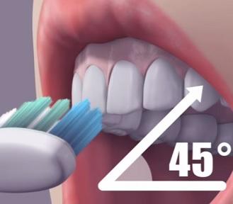 Při čištění zubů je důležitá i pozice kartáčku, která by měla být ve 45-stupňovém úhlu.
