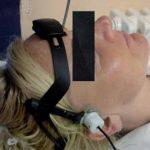 Sonotrombolýza neboli jak zprůchodnit tepnu ultrazvukem