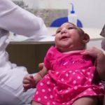 Mikrocefalie – příčiny a příznaky nemoci