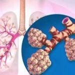 Rehabilitace u nemocných s chronickou obstrukční plicní nemocí (CHOPN)