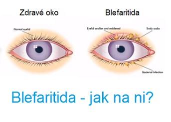 Blefaritida - zánět očních víček