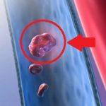 Plicní embolie – příznaky, příčiny a léčba
