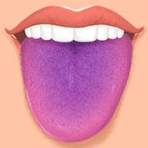 Fialový jazyk