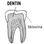 Chraňte svou zubní sklovinu. Jak na to?