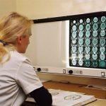 Ohtaharův syndrom – příznaky, příčiny a léčba
