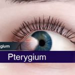 Pterygium neboli surfařovo oko – příznaky, příčiny a léčba