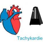 Tachykardie (zrychlení srdečního rytmu) – co je to? Příčiny, příznaky a léčba