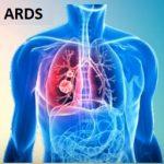 Syndrom akutní respirační tísně (ARDS) – příznaky, příčiny a léčba