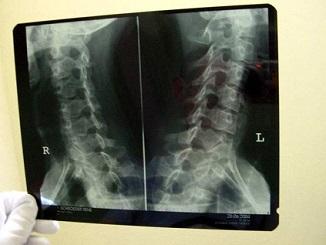 Přinášíme vám zajímavosti o rentgenovém záření.