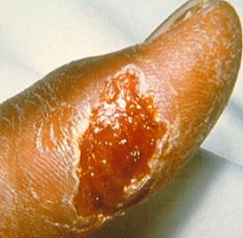 Jedním ze symptomů tularémie může být kožní vřed, který se tvoří v místě infekce.