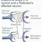 Parkinsonova choroba – symptomy, prevence a diagnostika