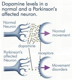 Parkinsonova choroba - symptomy, prevence a diagnostika