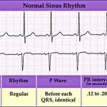 Význam EKG nejen v rehabilitaci