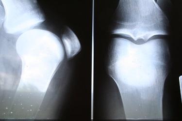 Rehabilitace po zlomenině krčku