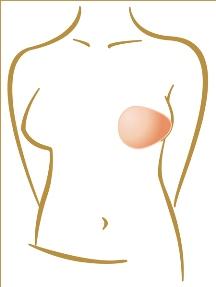 Rehabilitace po operaci prsu