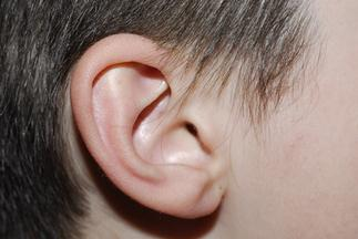 Otoplastika - korekce odstávajících uší