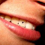 Zubní kámen – příčiny, příznaky a léčba