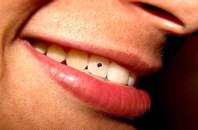Zubní kámen - příčiny, příznaky a léčba