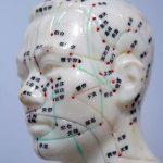 Zázračná akupunktura