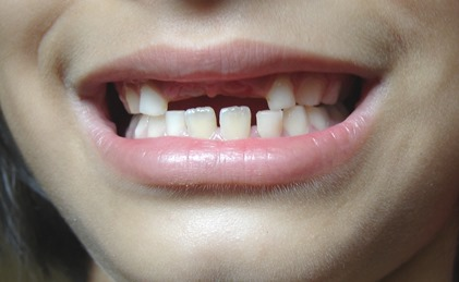 Jak se u dětí prořezávají zuby