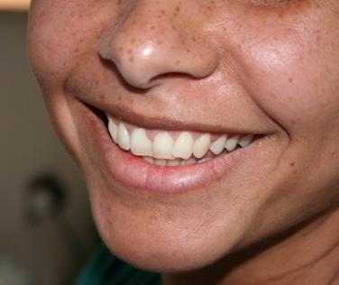 Nová vakcína proti zubnímu kazu