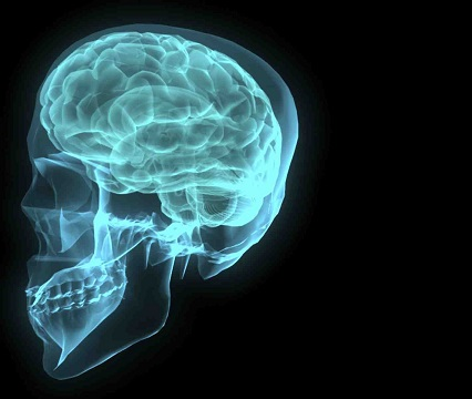U mozkové příhody rozhodují sekundy, je třeba ji rozpoznat včas!