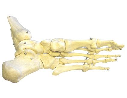 Osteoporóza - hrozí řídnutí kostí i vám?