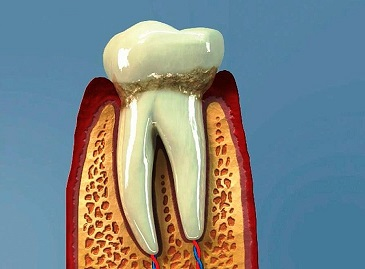 Chronický zánět dásní