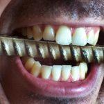 Anankastická porucha osobnosti – příznaky a léčba