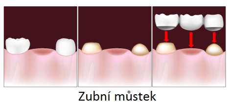 zubny-mustek