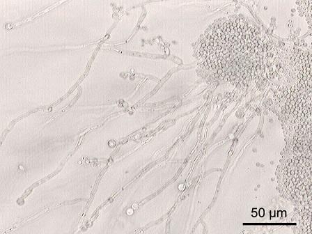 Candida albicans - vše co chcete vědět