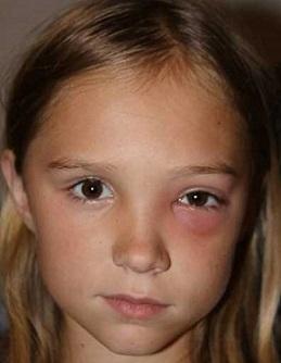 Orbitocelulitida může být nebezpečná.. zejména u dětí..