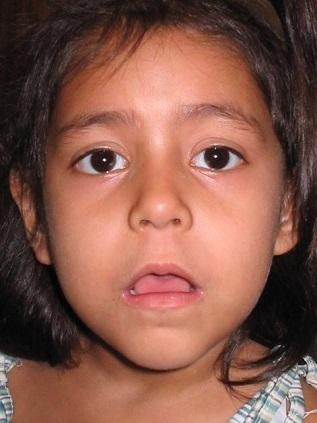 Pokud zvětšená nosní mandle přetrvává déle, dítě začíná mít typický vzhled obličeje: unavená tvář s pootevřenými ústy