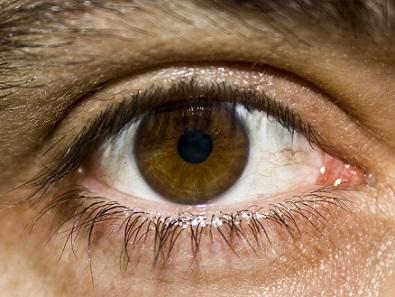 Dlouhodobě vysoká hladina cukru v krvi poškozuje bariéru pro přestup látek mezi krví a sítnicí uvnitř zadní části oka.
