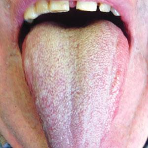 Bílý povlak na jazyku