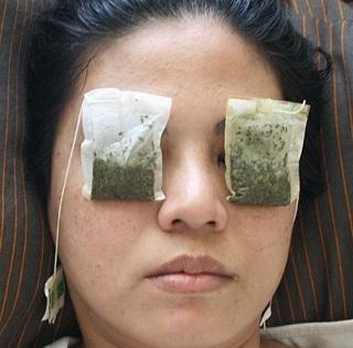 Tmavé kruhy pod očima a otoky odstraníte přiložením studených sáčků čaje.